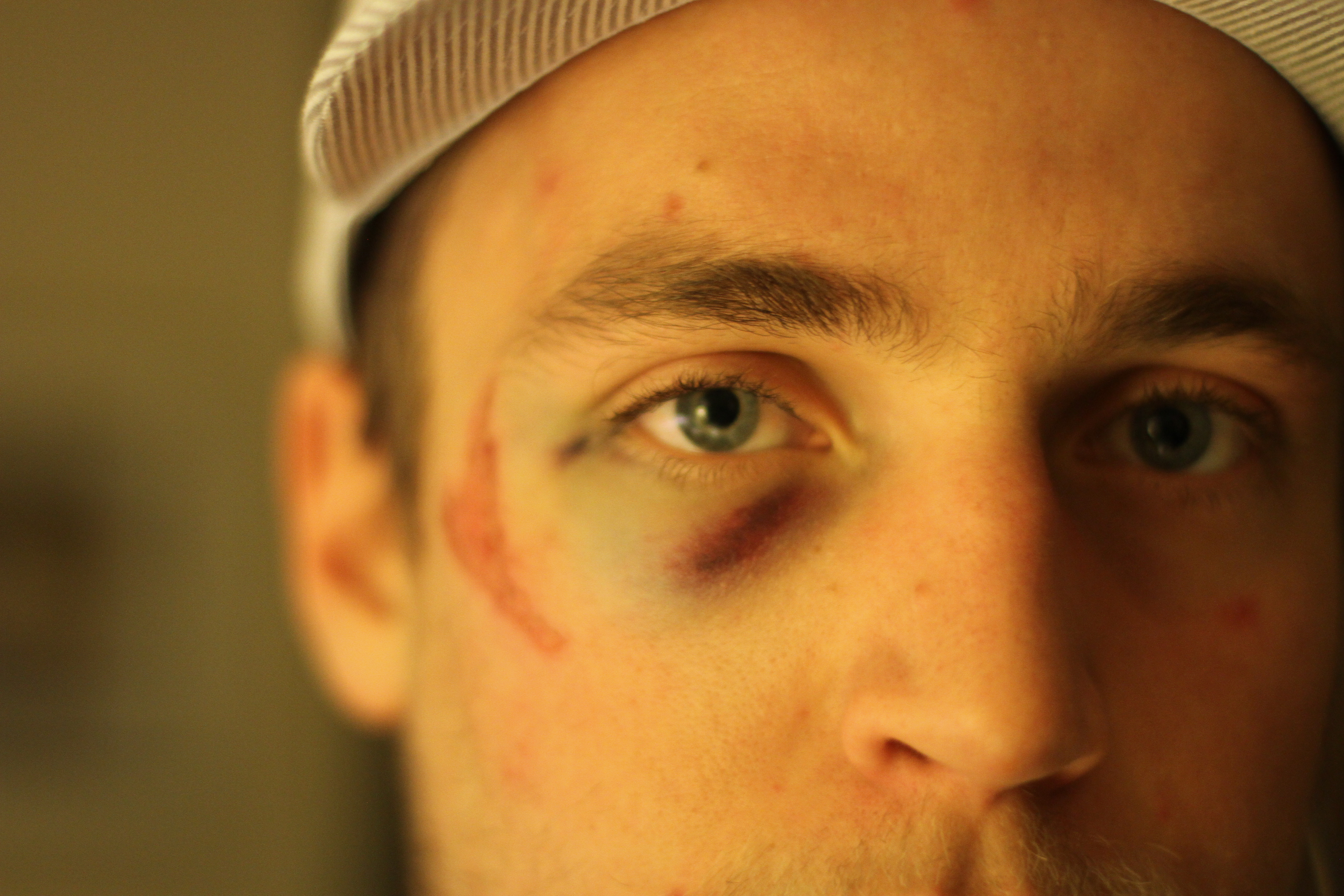 Matt's Broken Face